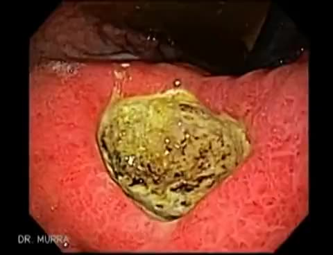 Watch and share Endoscopy Of Gastric Ulcer GIFs on Gfycat