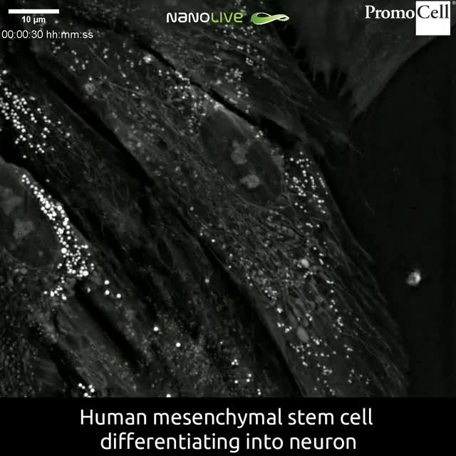 Watch and share See A Stem Cell Turn Into A Neuron! GIFs by GIFs For Everything on Gfycat