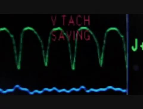 Watch and share Ekg Machine GIFs on Gfycat