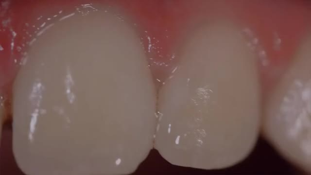 Watch and share Toirac Maria GIFs by America Dental Clinic on Gfycat
