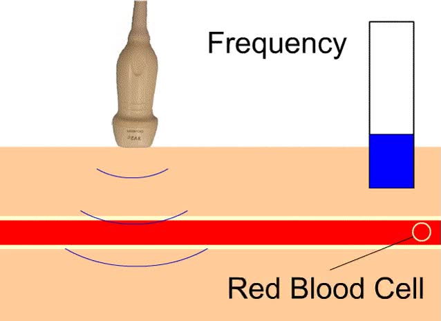 Watch and share Figure 2:  The Frequency Of The Ultrasound Waves Increases As GIFs on Gfycat