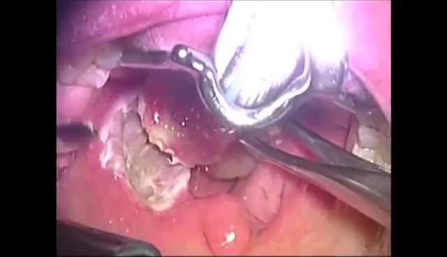 diathermy, surgery, bipolar tonsillectomy GIFs