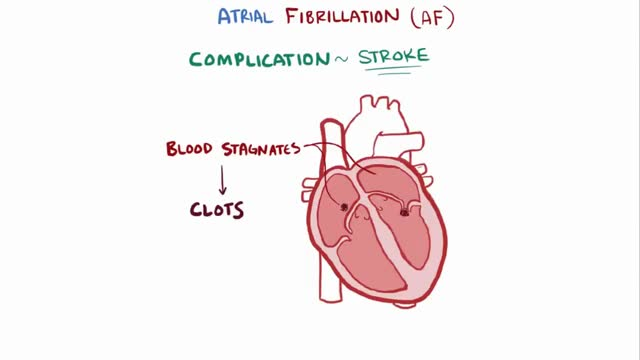 Watch Atrial fibrillation (A-fib, AF) - causes, symptoms, treatment & pathology GIF on Gfycat. Discover more related GIFs on Gfycat