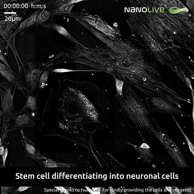 Watch and share Stem Cell Differentiating Into Neuronal Cells GIFs on Gfycat