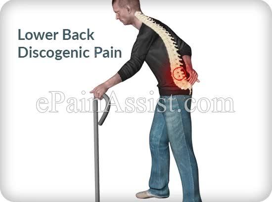 Watch and share Lower Back Discogenic Pain - EPainAssist.com GIFs by ePainAssist.com on Gfycat