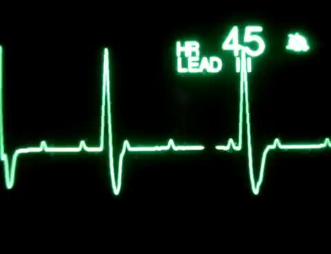 Watch and share 3rd Degree Atrioventricular Block GIFs on Gfycat