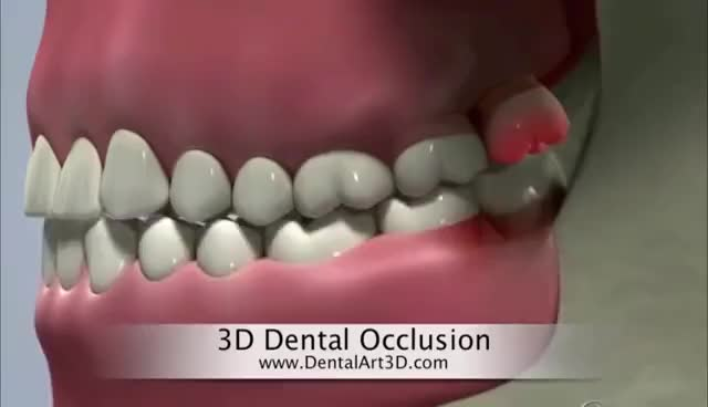 Watch and share DentalArt3D. 3D Dental Occlusion GIFs on Gfycat