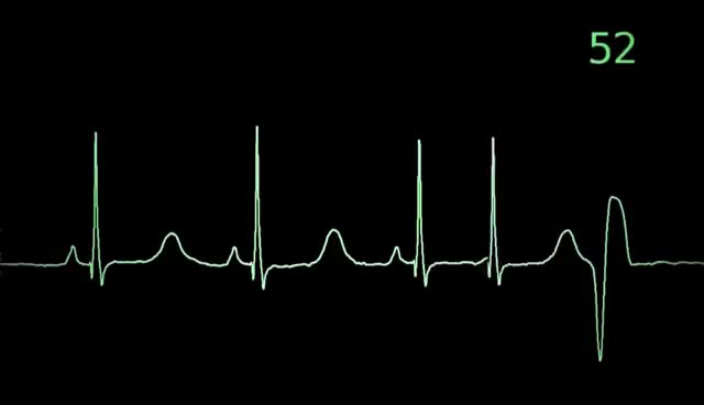 Watch Torsades de Pointes heart monitor animation GIF on Gfycat. Discover more related GIFs on Gfycat