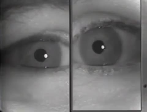 Watch and share Aqcuired Binocular Pendular Nystagmus GIFs on Gfycat