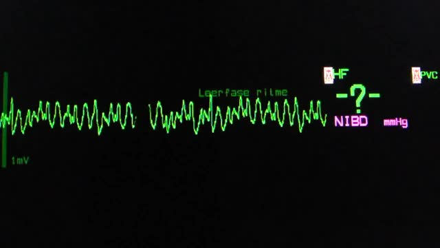 Watch coarse ventricular fibrillation on an ECG heart monitor GIF on Gfycat. Discover more Fibrillation, Heart, Monitor, coarse, ecg, ventricular GIFs on Gfycat