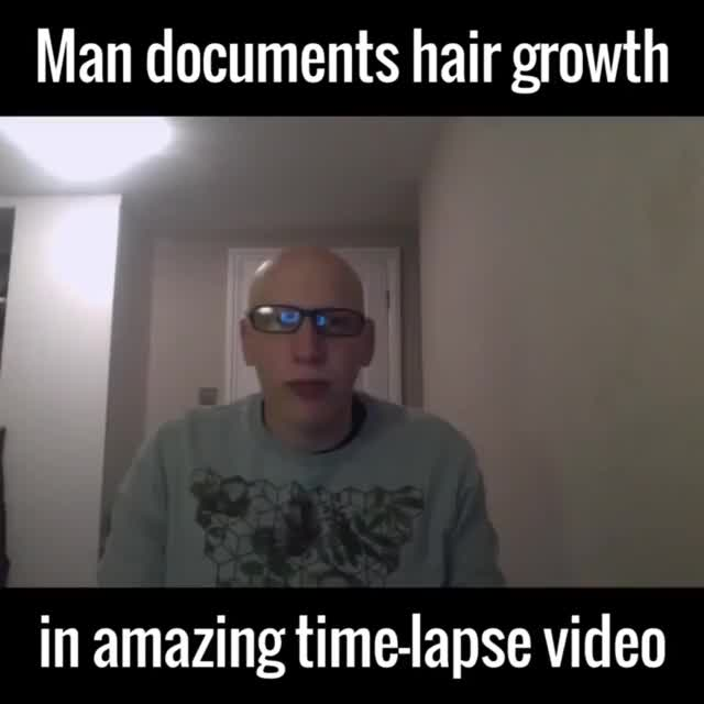 Watch and share Man Documents Hair Growth GIFs by HoodieDog on Gfycat
