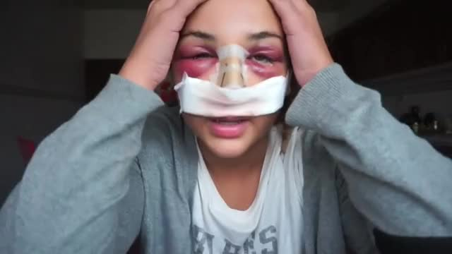 Watch and share Diana Shekhany GIFs and Rhinoplasty GIFs on Gfycat