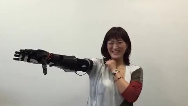 Watch and share Prosthetic Arm GIFs on Gfycat