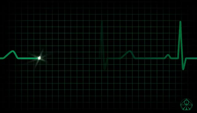 Watch and share Best ANALOG ECG Animation - HD GIFs on Gfycat