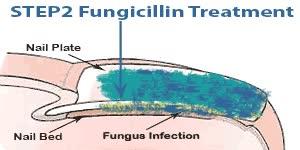 Watch and share FixaFungus Toenail Fungus Treatment Steps GIFs on Gfycat