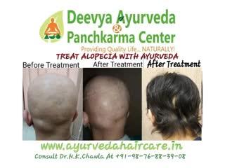 Watch Alopecia Universalis treatment GIF by @deevyaayurveda on Gfycat. Discover more alopecia, alopecia areata, alopecia ayurveda treatment, alopecia barbae, alopecia universalis, alopeica herbal treatment, androgenetic alopecia, ayurvedic hairl, hairfall treatment, hairloss treatment GIFs on Gfycat
