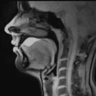Watch Swallowing MRI GIF on Gfycat. Discover more Digestive GIFs on Gfycat
