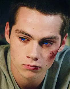 "Watch ""Scott?"" GIF on Gfycat. Discover more muse: werewolf!stiles, packanchored GIFs on Gfycat"