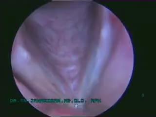 sulcus vocalis