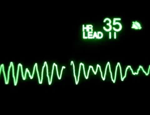 Watch Ventricular Fibrillation GIF on Gfycat. Discover more BLS, acls, cpr, vf, vfib GIFs on Gfycat