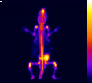Watch and share [18F]NaF Bone Scanning GIFs on Gfycat