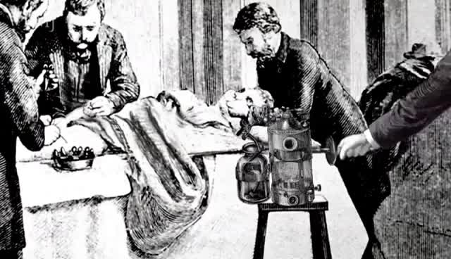 Watch and share Joseph Lister: Surgery Transformed GIFs on Gfycat
