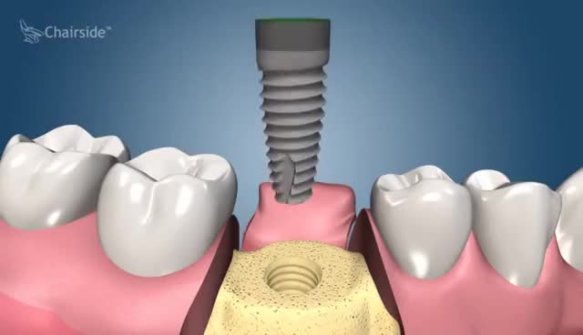 Watch and share Dental Implant Procedure - Two Stage GIFs on Gfycat