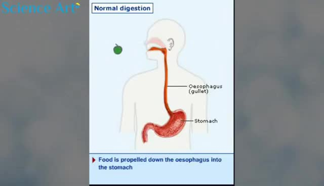 Watch and share How Acid Reflux Works Animation Gastroesophageal Reflux Disease Symptoms Causes Video Endoscopy GERD GIFs on Gfycat