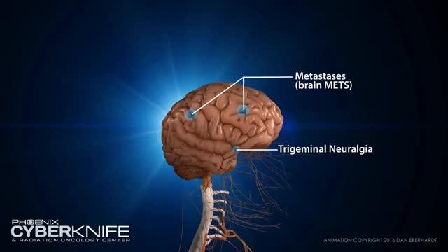 Watch and share CyberKnife Brain Tumor Animation GIFs on Gfycat