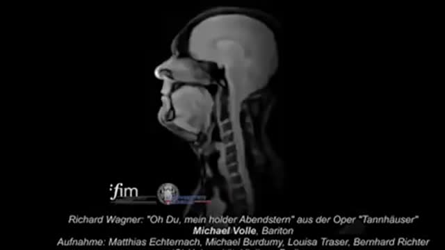 r/sciences, Watch MRI footage of a world-class opera singer performing GIFs