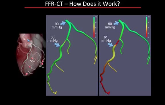 Watch Fractional Flow Reserve Coronary CTA GIF on Gfycat. Discover more related GIFs on Gfycat
