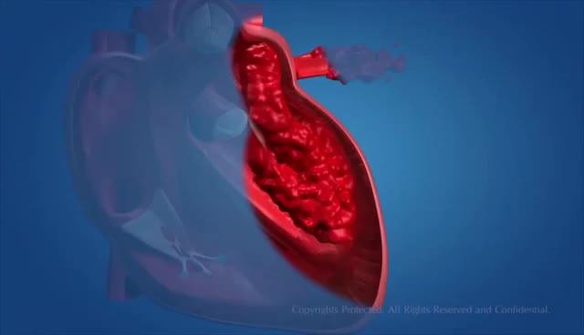 Watch and share Human Circulatory System GIFs on Gfycat