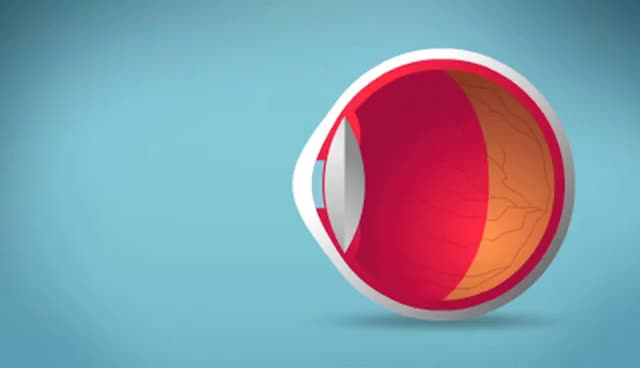 Watch and share Myopia, Hyperopia & Astigmatism Explained GIFs on Gfycat