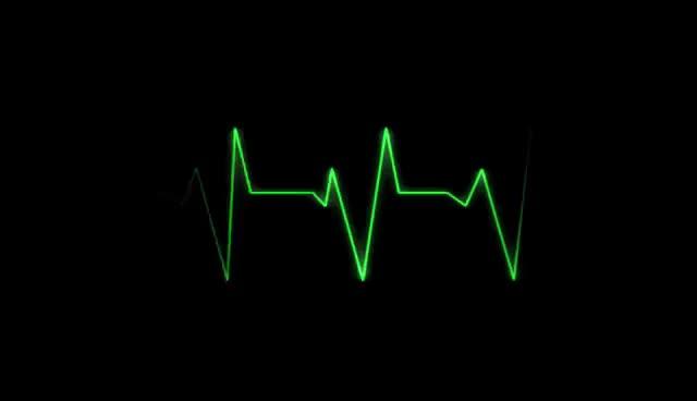Watch and share Batimento Cardiaco Video Gratis Sem Direito Autoral. GIFs on Gfycat