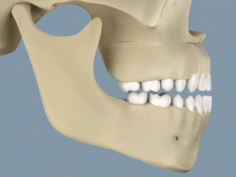 educationalgifs, interestingasfuck, wince, Upper Orthognathic Surgery using a LeFort 1 level osteotomy (reddit) GIFs