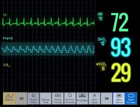 Watch and share ECG GIFs on Gfycat