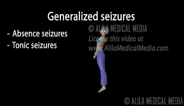 Watch Epilepsy, Animation. GIF on Gfycat. Discover more All Tags, Disorders, Medicine, Nerve, Neurology, SCIENCE, anatomy, animated, center, child, classification, diseases, eeg, focal, generalized, myoclonic, neurological, neuropathology, syndrome, therapies GIFs on Gfycat