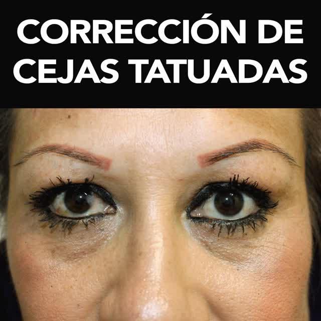 Watch and share CORRECCIÓN-DE-CEJAS-BROW-BAR.gif GIFs on Gfycat