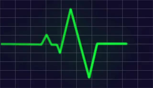 Watch and share Heart Beat Monitor HD GIFs on Gfycat