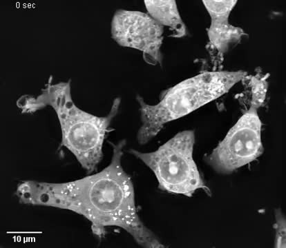 r/sciences, Macrophages devouring bacteria GIFs