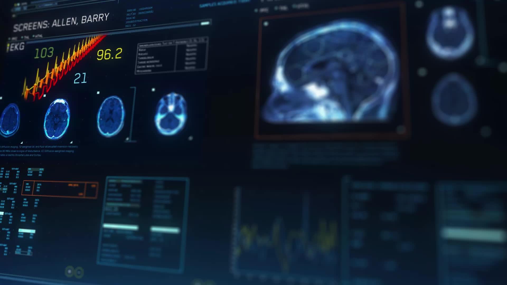IAmA, animation, theflash, The Flash Season 3 MRI FUI by Zeis GIFs