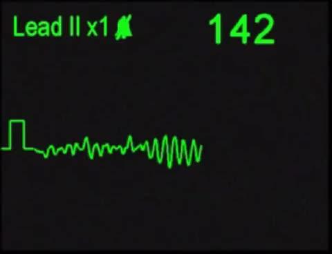Watch Fibrilacion Ventricular / Ventricular Fibrillation GIF on Gfycat. Discover more related GIFs on Gfycat