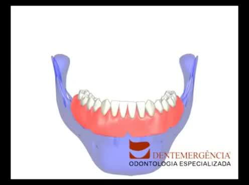 Watch and share Overdenture Com O`ring(Dentemergência) GIFs on Gfycat