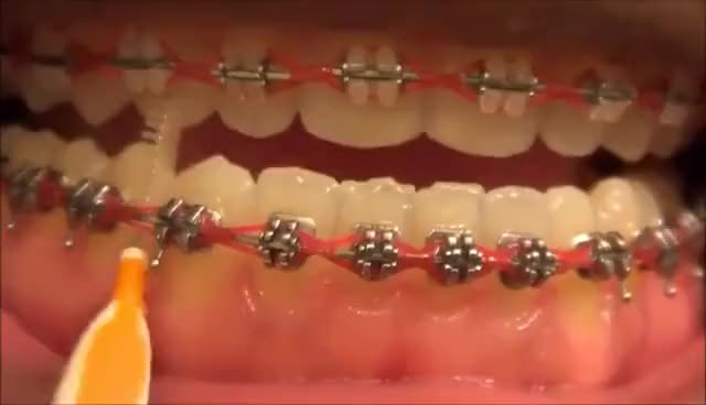 Watch and share {#111} HOW TO USE MY INTERDENTAL TOOTHPICKS WITH BRACES ON GIFs on Gfycat