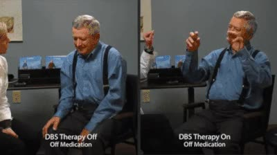 Watch and share Parkinson GIFs on Gfycat