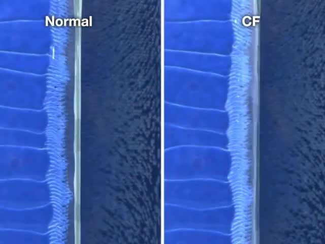 Watch and share Mauro Ferreira GIFs and Pulmonary GIFs on Gfycat