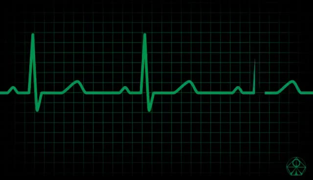 Watch and share Best DIGITAL ECG Animation - HD GIFs on Gfycat