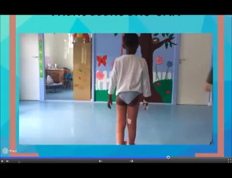 Watch Assessment of a Child with a Limp GIF on Gfycat. Discover more related GIFs on Gfycat