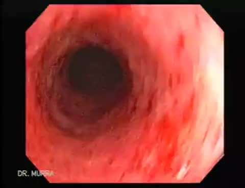 Watch and share Hemorroides GIFs and Endoscopia GIFs on Gfycat