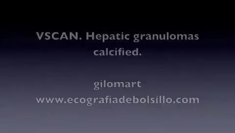 Watch and share VSCAN. Hepatic Granulomas Calcified GIFs on Gfycat